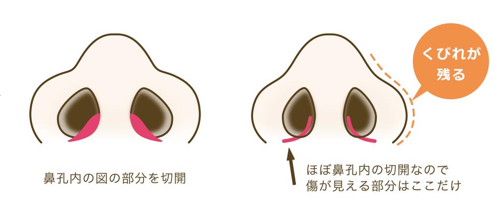 鼻翼縮小術ナチュラルデザインオーダー