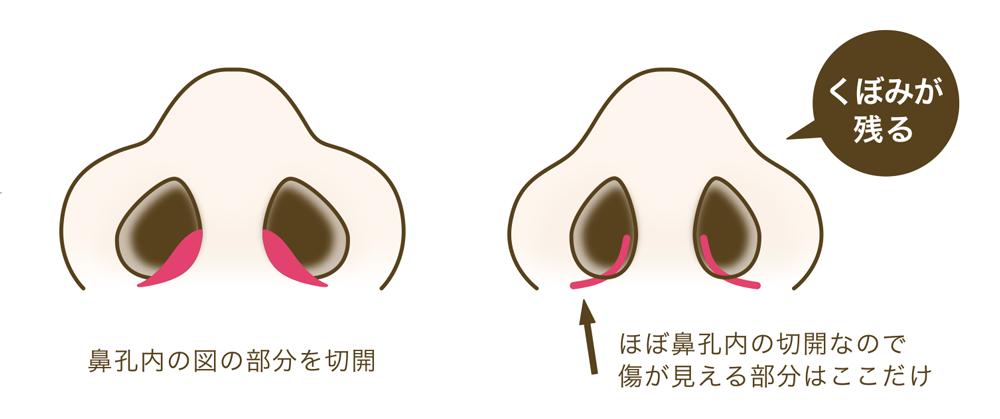 オーダーメイド鼻翼縮小術