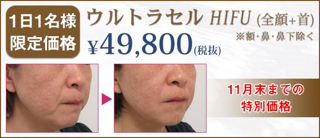 ウルトラセルHIFU49800円