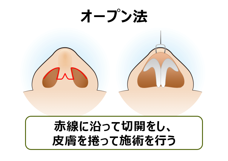 鼻中隔延長術オープン法