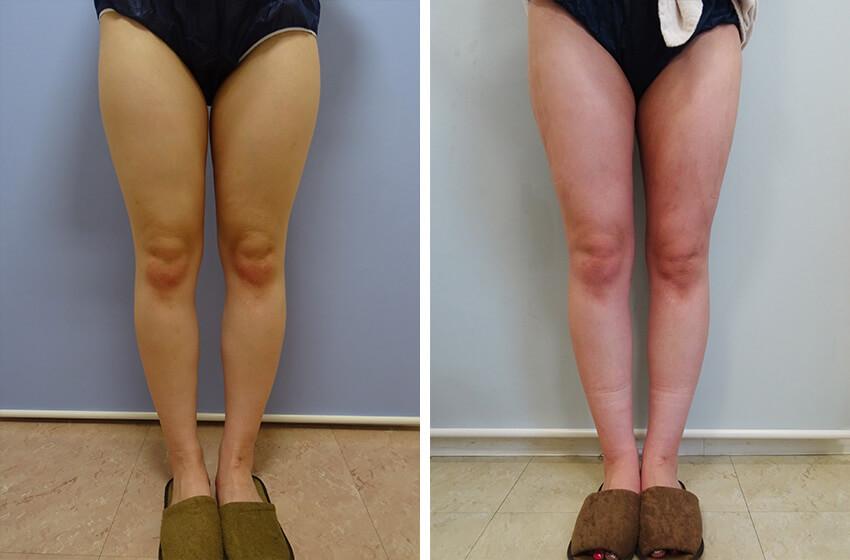 脂肪吸引・大腿+その他1 施術前 施術後