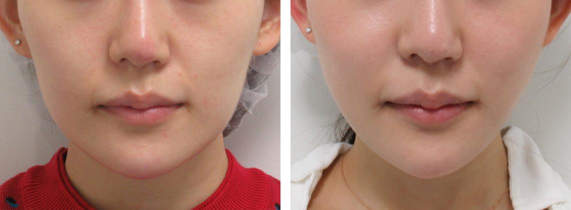 人気の逆三角形の小顔に 施術前 施術後 前
