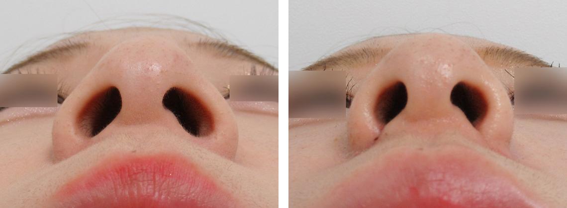 鼻翼を縮小でイメージが変わります 施術前 施術後 鼻翼縮小術