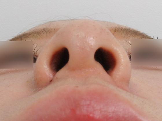 鼻翼を縮小でイメージが変わります 施術後 鼻翼縮小術