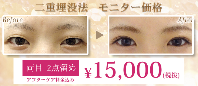 二重術埋没法を両目2点留め15,000円(税抜)