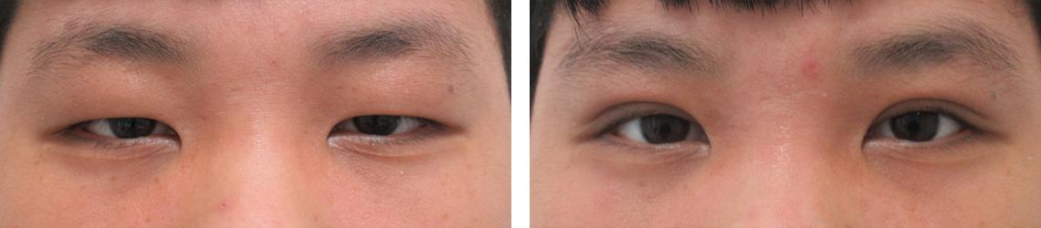 ミューラー筋タッキングで眼瞼下垂も修正 施術前 施術後 目もと