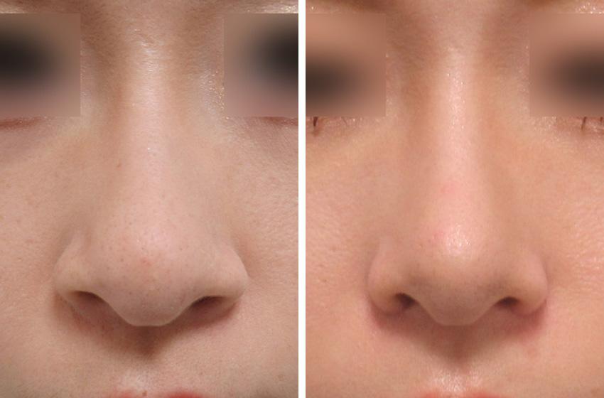 鼻翼縮小の完成です 施術前 施術後 正面