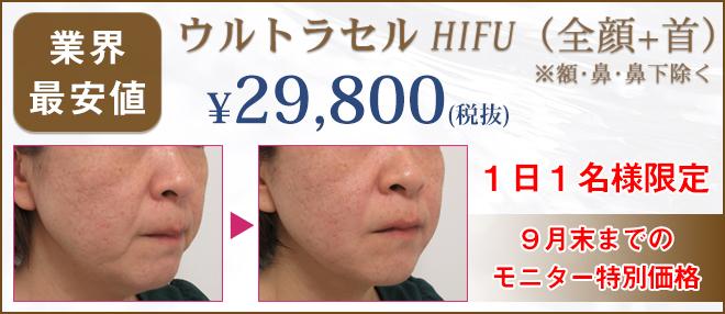 ウルトラセルHIFU29800円