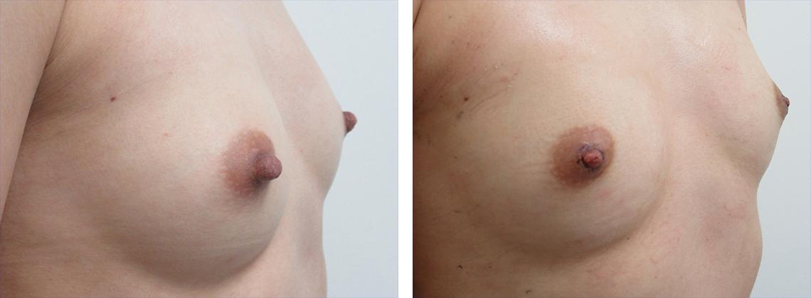 他院乳頭縮小術を当院にて再施術 施術前 施術後 斜め