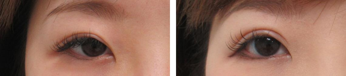 右目を埋没法と眼瞼下垂で調整 施術前 施術後 右目