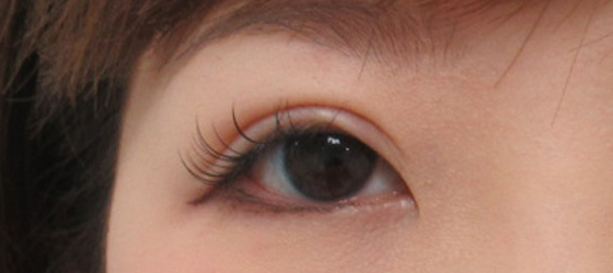 右目を埋没法と眼瞼下垂で調整 施術後 ta_000392_1mafter1 右目