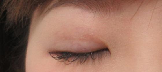 右目を埋没法と眼瞼下垂で調整 施術後 ta_000392_1mafter2 右目