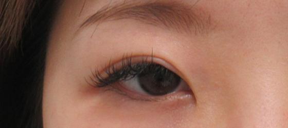 右目を埋没法と眼瞼下垂で調整 施術前 ta_000392_before1 右目