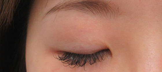右目を埋没法と眼瞼下垂で調整 施術前 ta_000392_before2 右目