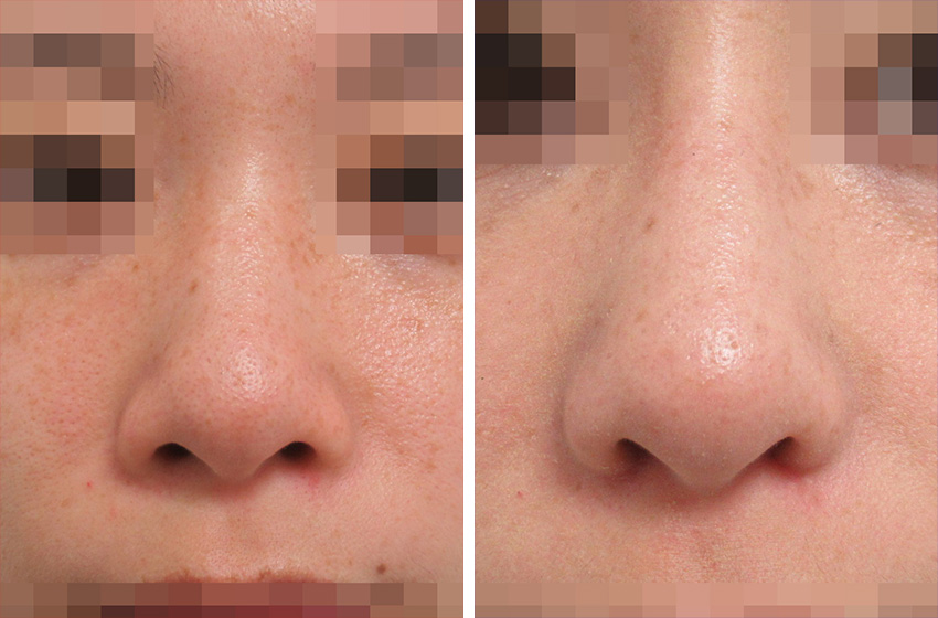 内側から鼻翼縮小 施術前 施術後 正面