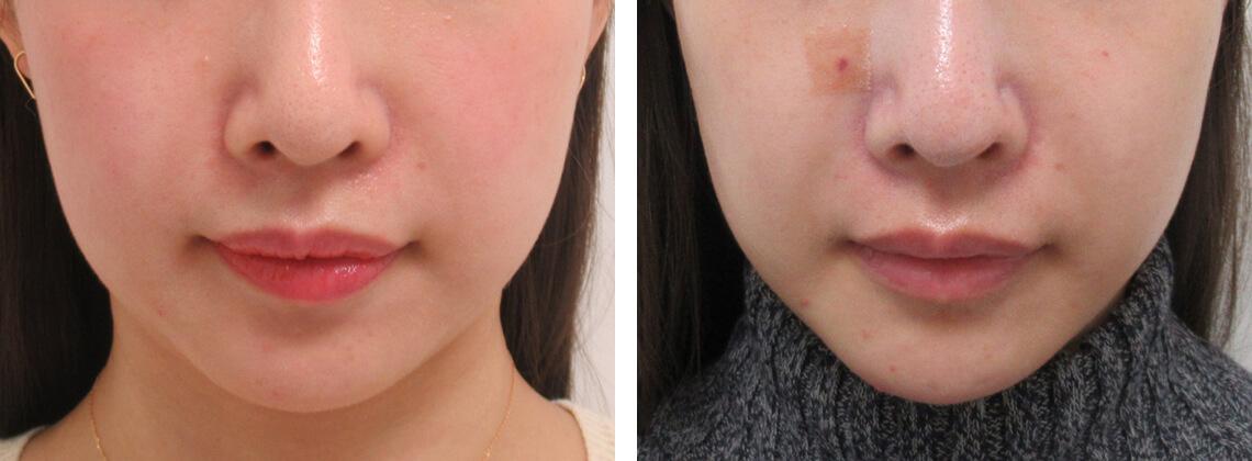 口角の脂肪が多い方の場合 施術前 施術後 正面