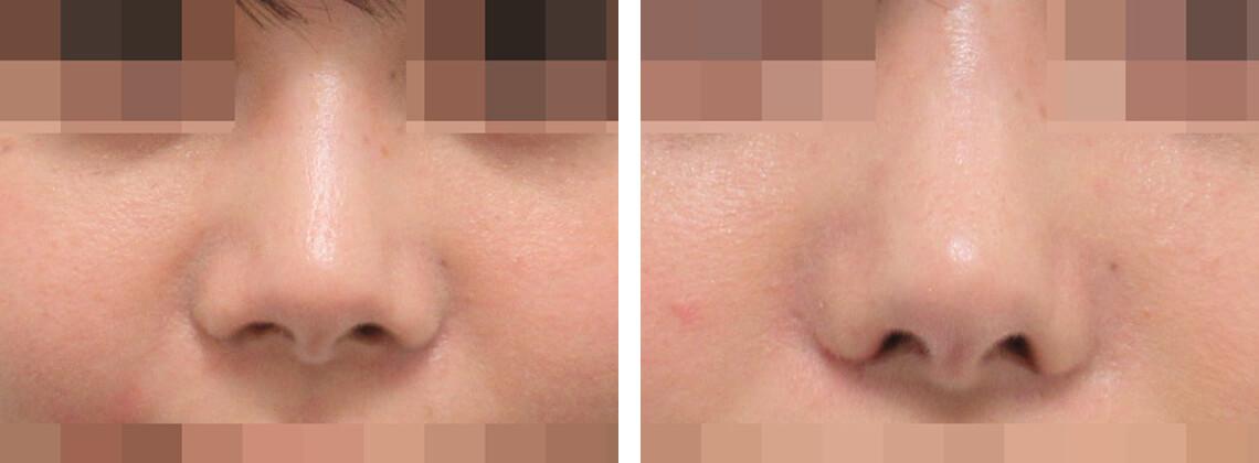 鼻翼縮小術の正面からの症例 施術前 施術後 両側鼻翼軟骨