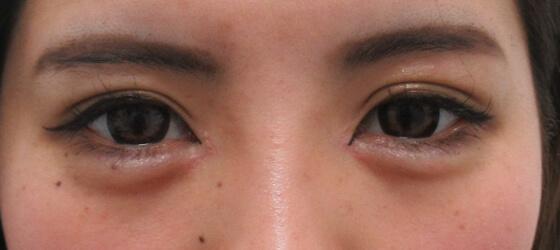 目の黄金比を整える 施術後 ta_001241_1mafter1 目元