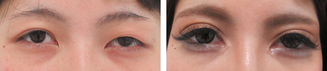 眼瞼下垂の改善 施術前 施術後 目元
