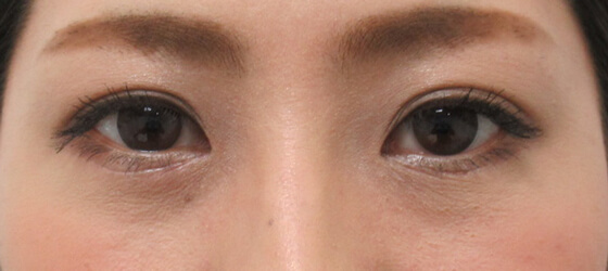 目の下のたるみクマ改善 施術後 ta_1101_eye_1mafter1