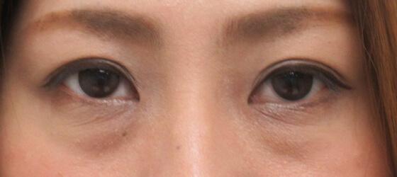 目の下のたるみクマ改善 施術前 ta_1101_eye_before1 目元