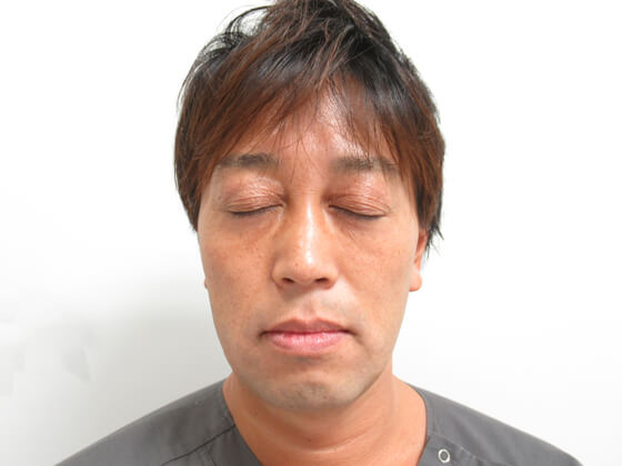 TAC式 ツヤ肌コラーゲンリフト症例