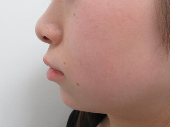 ヒアルロン酸で顎形成 施術後 ki_1575_after1 顎形成
