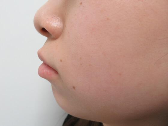 ヒアルロン酸で顎形成 施術前 ki_1575_before1 顎形成