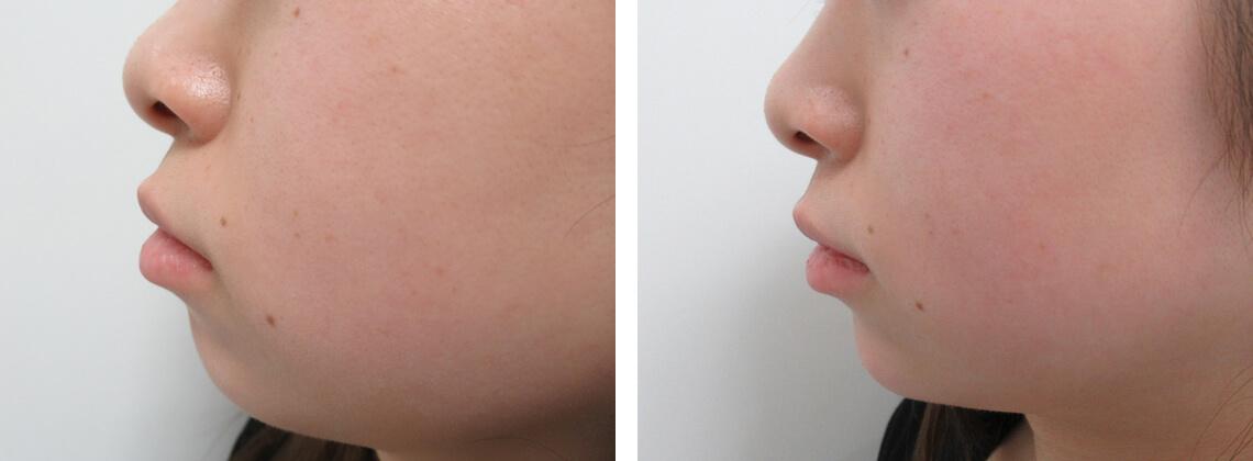 ヒアルロン酸で顎形成 施術前 施術後 顎形成