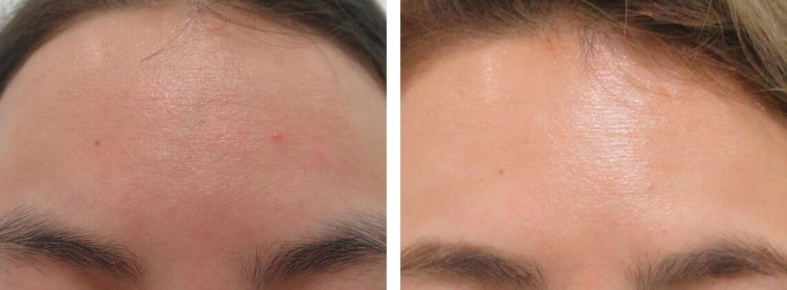 額の水光注射 施術前 施術後 額