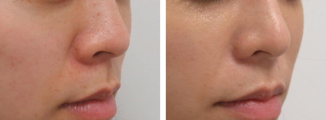 斜めから見ても整った小鼻に 施術前 施術後 斜め
