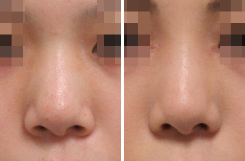 小鼻の形を整えると正面からも変化が分かります 施術前 施術後