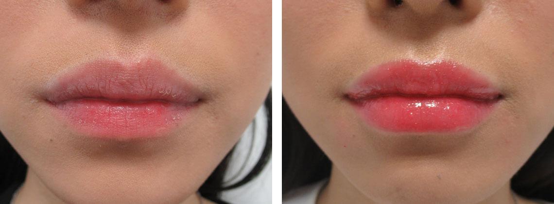 唇の縦じわ改善 施術前 施術後 口元