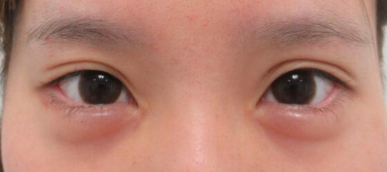 タレ目形成と目の縦幅と横幅を変える 施術後 ta_761_3mafter1 正面
