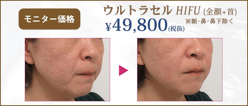 ウルトラセルHIFUがモニター価格49800円(税抜)