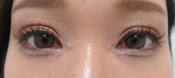 目頭切開の傷も落ち着きます 施術後 正面