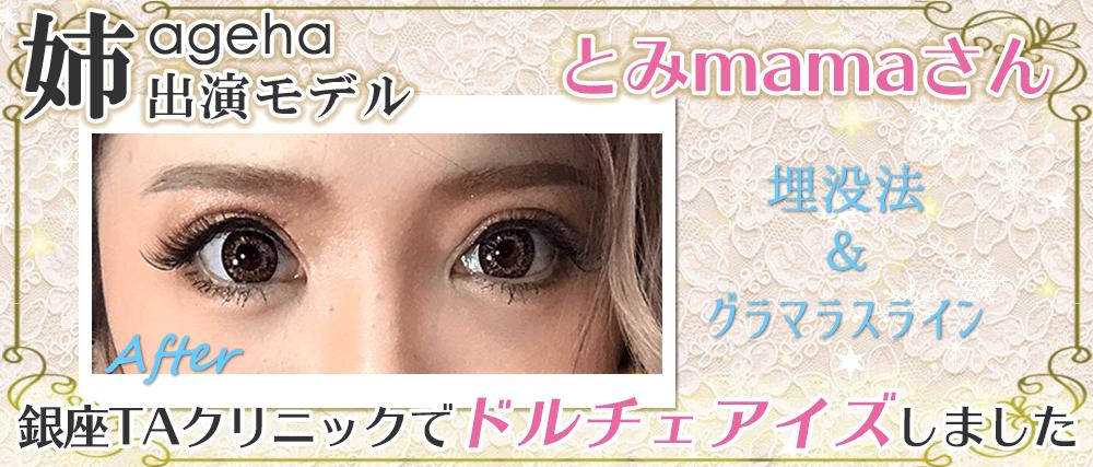 姉ageha出演モデルとみmama銀座TAクリニックで埋没法とグラマラスライン ドルチェアイズ