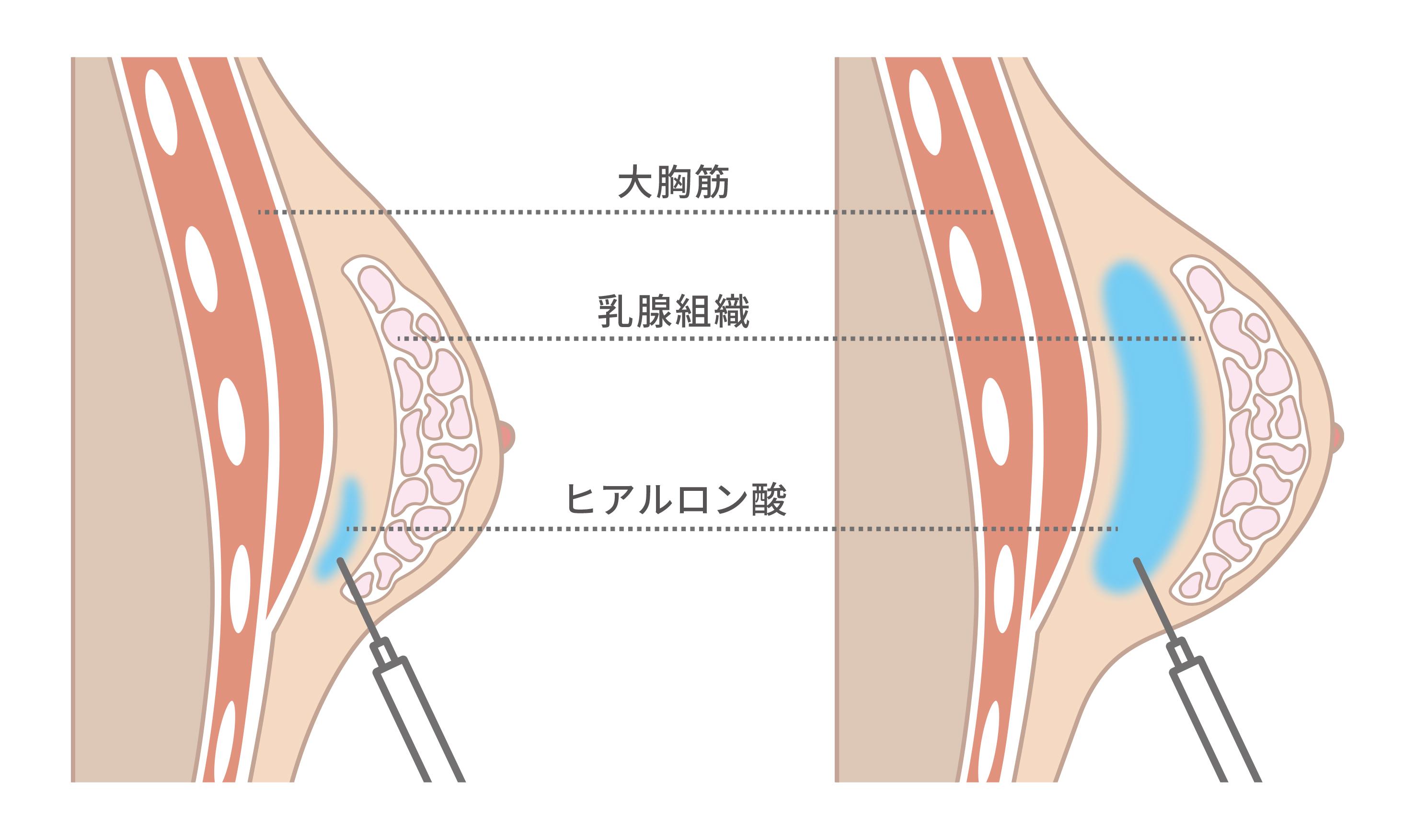 ヒアルロン酸注入豊胸で使用する「ヒアルロン酸」の効果とは