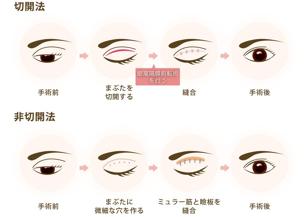 眼瞼下垂の「切開法」と「非切開法」の違い