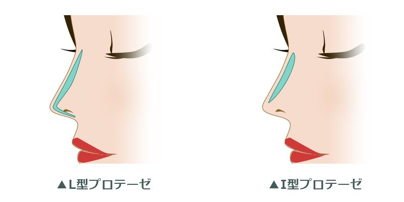 鼻のプロテーゼなら銀座TAクリニック