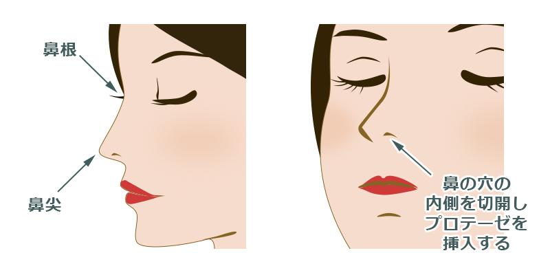 鼻のプロテーゼの傷跡