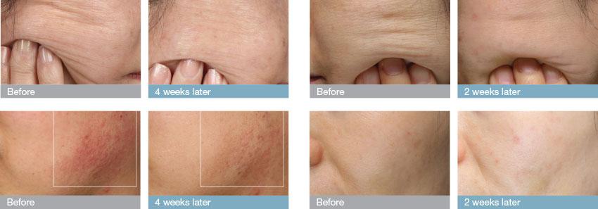 優れたアンチエイジングをもたらし、お肌の複数の症状改善