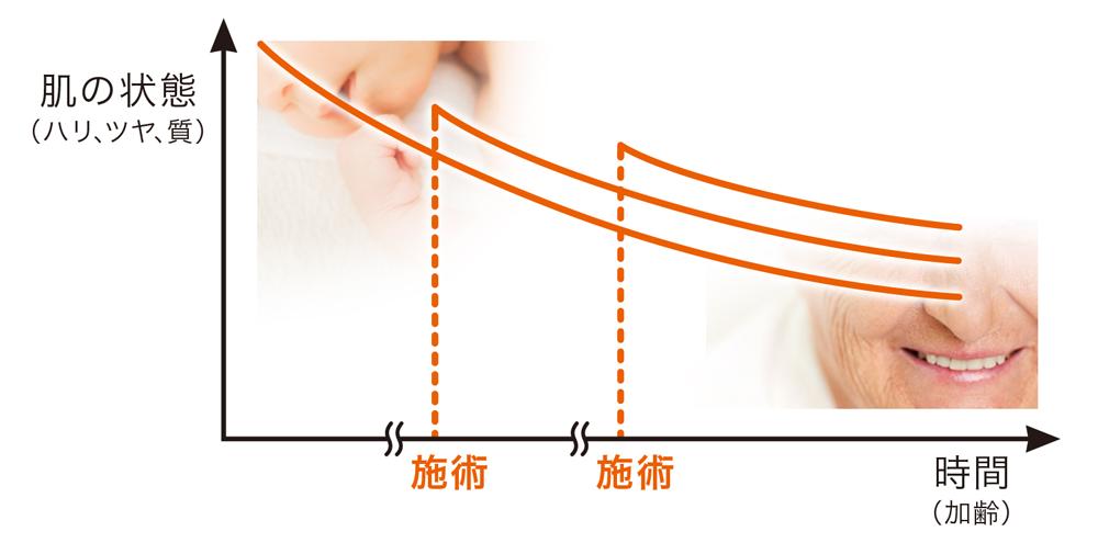 TAC式 ツヤ肌コラーゲンリフトは何年持続するの?